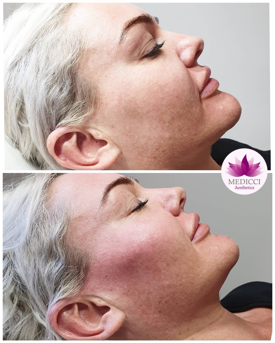 Non-Surgical Rhinoplasty? Yes, It's Possible!