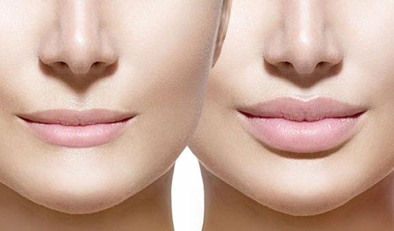 Gain That Confident & Youthful Look With Lip Augmentation